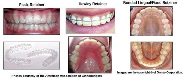 Retainers Indiana PA | Cavalancia Orthodontics