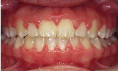 Anterior-Open-Bite-After-Image