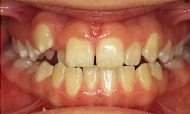 Anterior-Crossbite-and-Lateral-Open-Bite-Before-Image